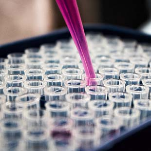 ADONEX – Uma das maiores distribuidoras de produtos laboratoriais em todo o país